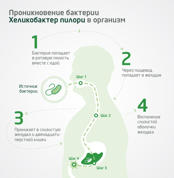 Бактерия хеликобактер: симптомы и причины